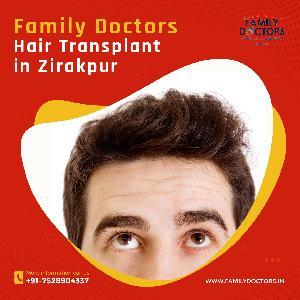 Familydoctors - Hair Transplant In Zirakpur, SCO 9, FF, The Eminence Plaza, SinghpuraZirakpur, Punjab 140603, Zirakpur, Zirakpur, Dentist :: Doctor